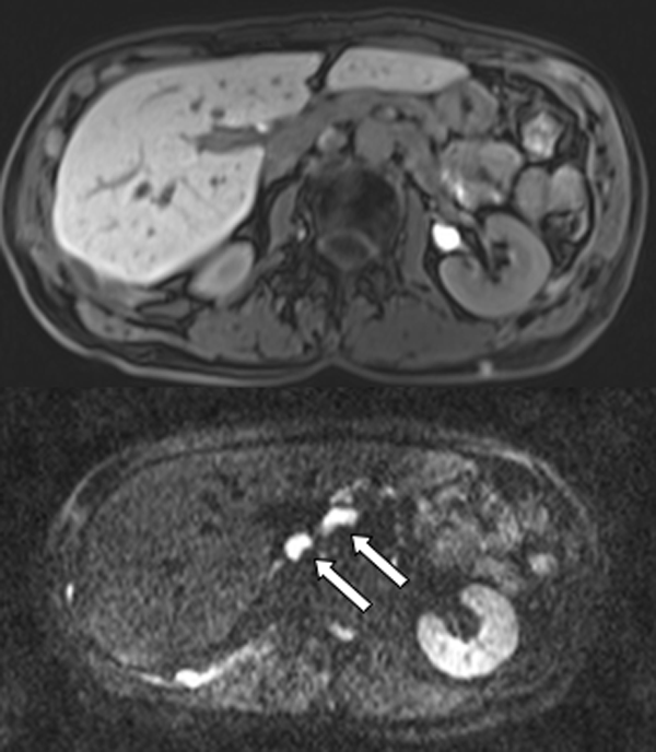 Enorme Bedeutung der Lymphknoten-Bildgebung in der Diagnostik ...